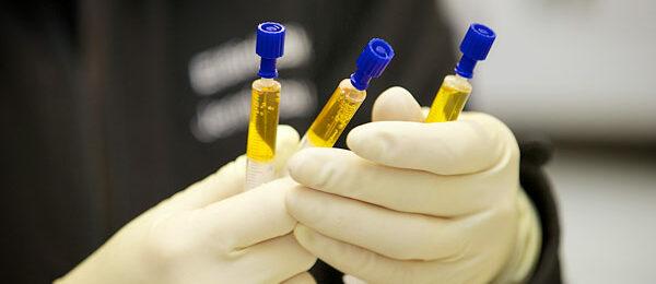 PRP ja IRAP: Regeneratiiviset hoitomuodot